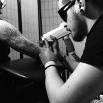 tetoválás eltávolítás kar, tattoo removal arm